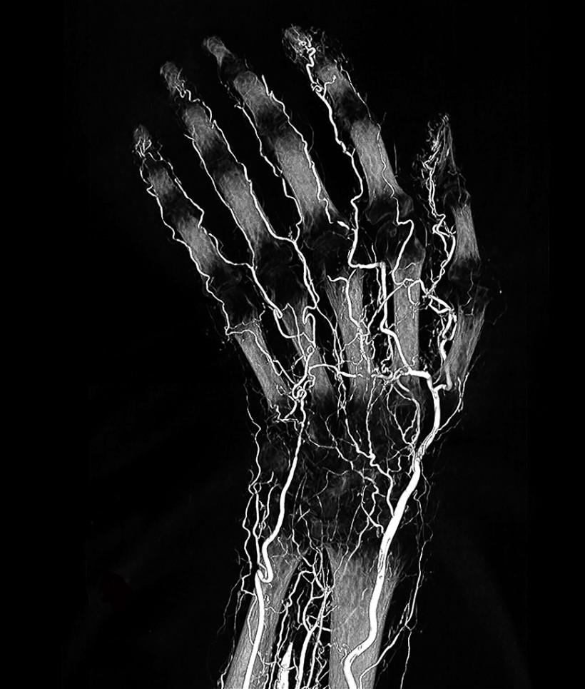 BriteVu Perfused Human Wrist