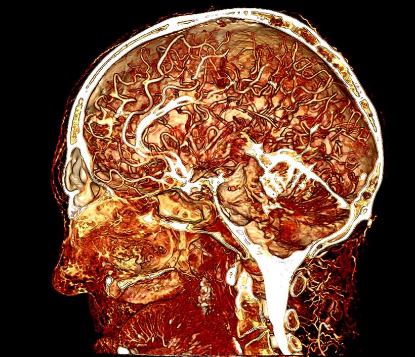 Contrast enhanced image of a human cadaver head