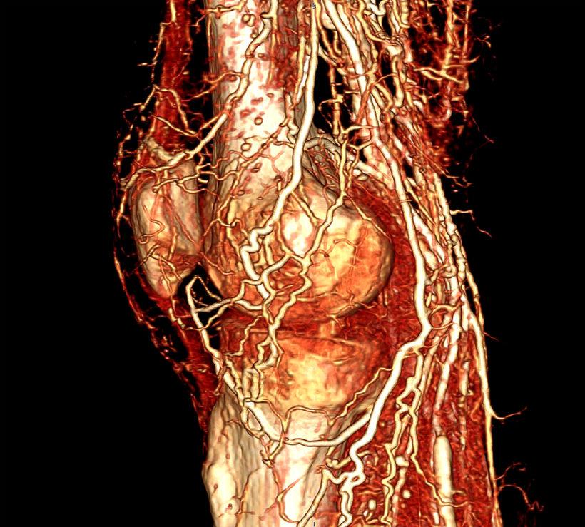 Human knee with BriteVu contrast