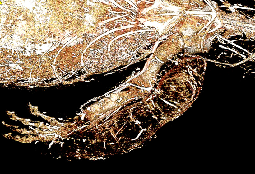 Savannah Monitor Leg Granuloma Perfused with BriteVu CT