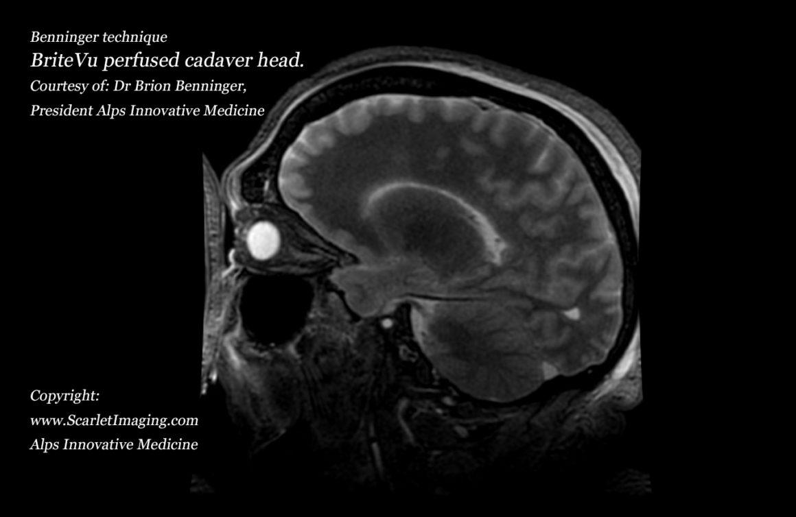 BriteVu contrast agent perfused human cadaver brain - BriteVu