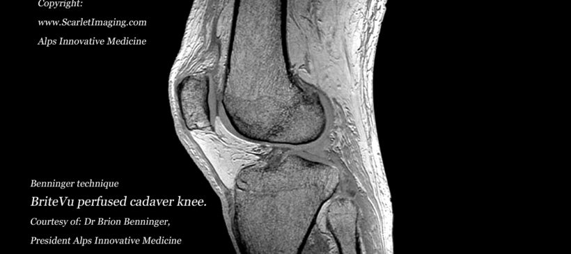 New technique to visualize the human knee using BriteVu and MRI