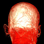 A human cadaver head perfused using BriteVu.