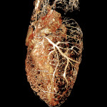 Rat heart perfused with BriteVu® contrast agent.