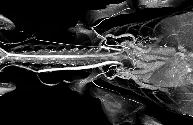 Alligator Neck and Heart High Radiodensity Contrast Perfusion with BriteVu