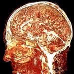 Human cadaver head perfused with BriteVu.