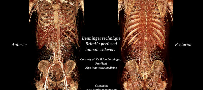 BriteVu perfused whole human cadaver!!!