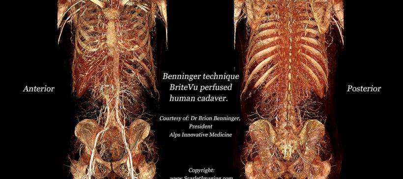 BriteVu perfused whole human cadaver!!!