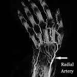A human cadaver wrist and hand was perfused using BriteVu high radiodensity contrast agent.