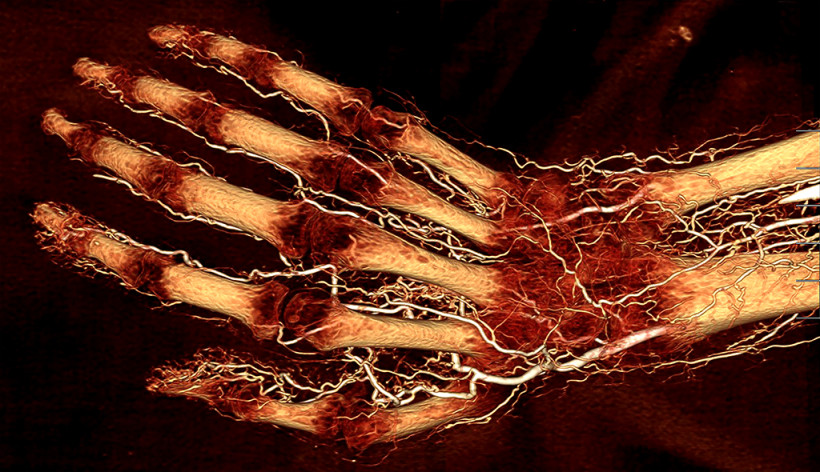 Human hand perfused with BriteVu contrast agent