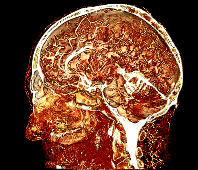 Contrast enhanced image of a human cadaver head