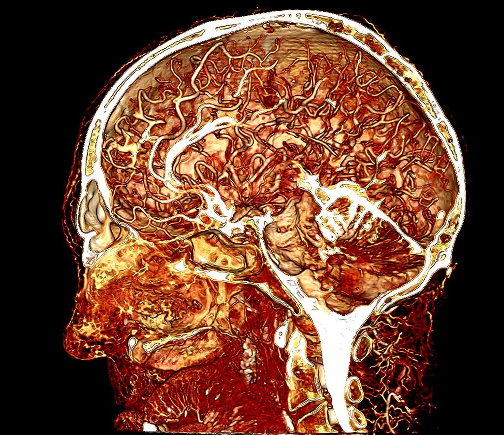 Contrast Enhanced Image Of A Human Cadaver Head Britevu