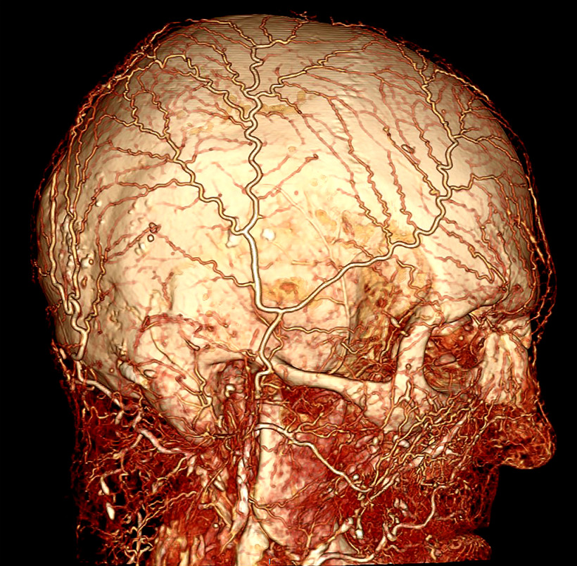 BriteVu contrast enhanced image of a human cadaver head