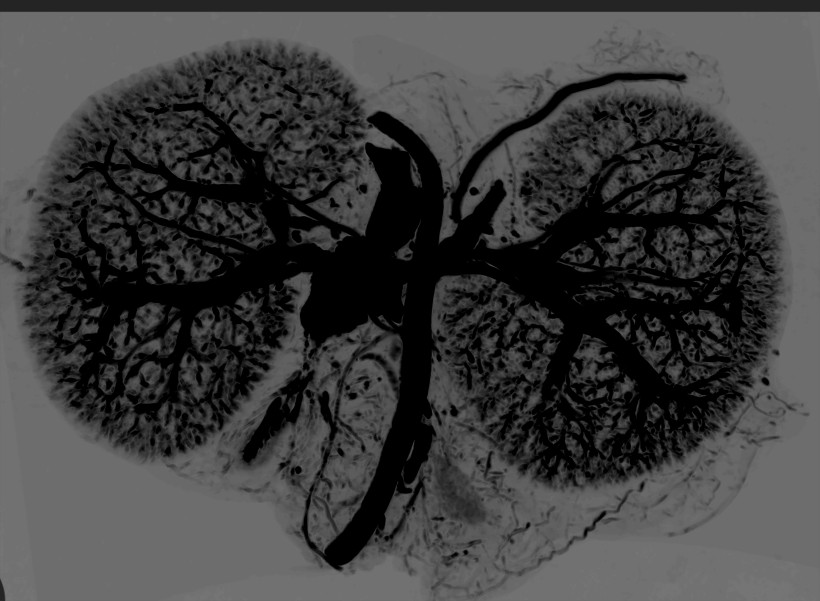 Contrast CT of Mouse Kidneys Perfused with BriteVu (Invert)