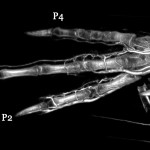Pigeon foot (whole body) BriteVu contrast ateriovenogram.