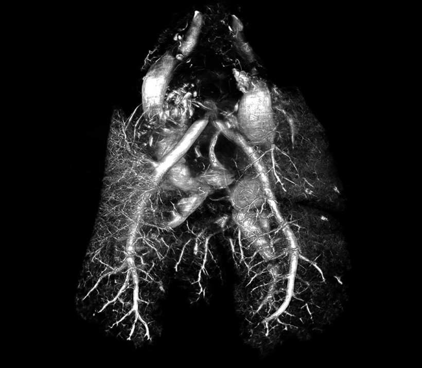 Rat Lungs Contrast CT Using BriteVu